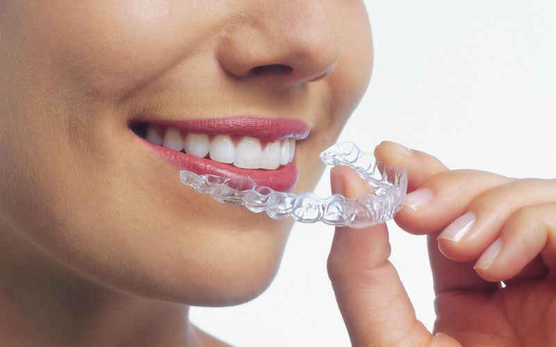invisalign-being-used-by-female